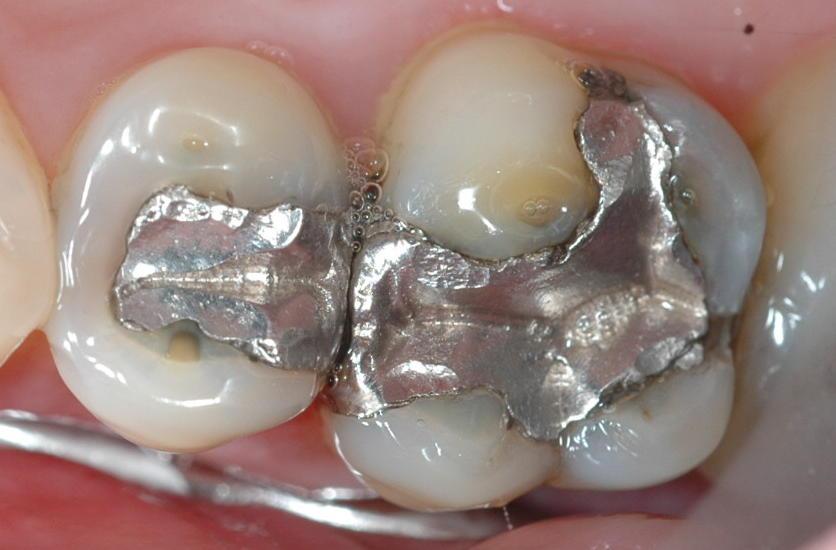 dental_mercury.jpg